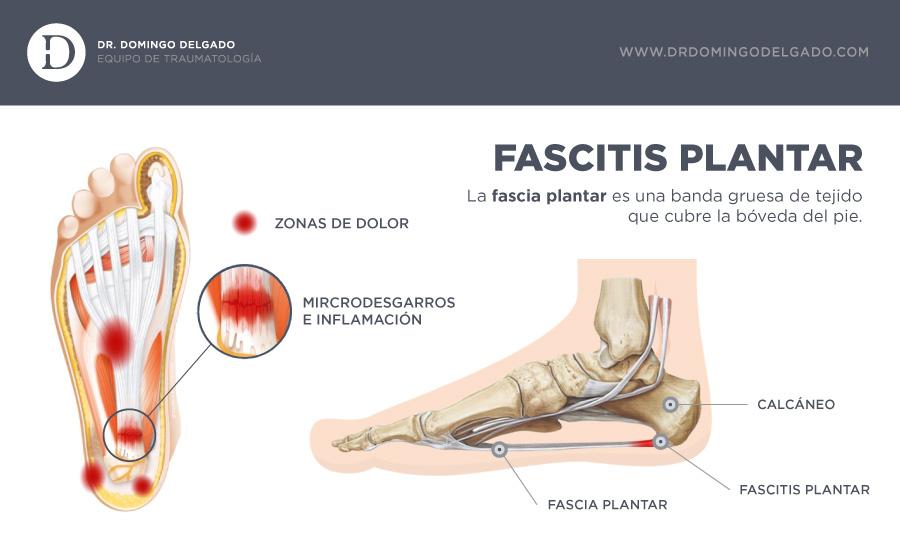 infografia-fascitisplantarv2