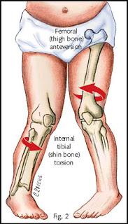 rotacion femoral